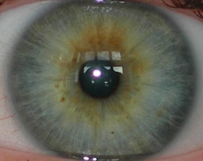 Фотоофтальмия фото